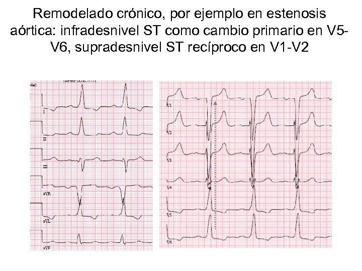 Remodelado crónico, por ejemplo en estenosis aórtica: infradesnivel ST como cambio primario en V