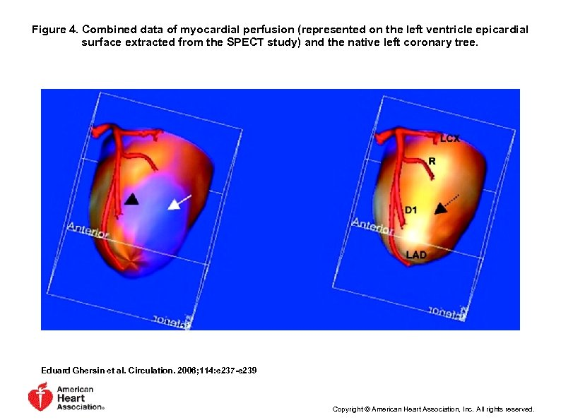Figure 4. Combined data of myocardial perfusion (represented on the left ventricle epicardial surface