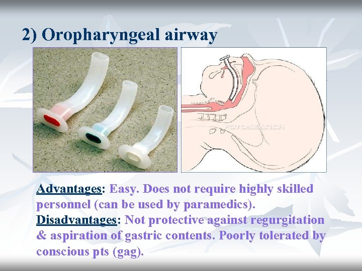 2) Oropharyngeal airway Advantages: Easy. Does not require highly skilled personnel (can be used