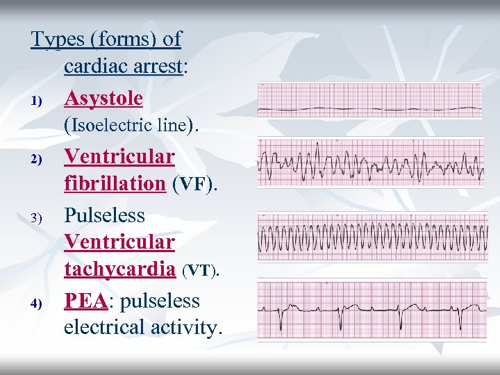 Types (forms) of cardiac arrest: 1) Asystole (Isoelectric line). 2) Ventricular fibrillation (VF). 3)