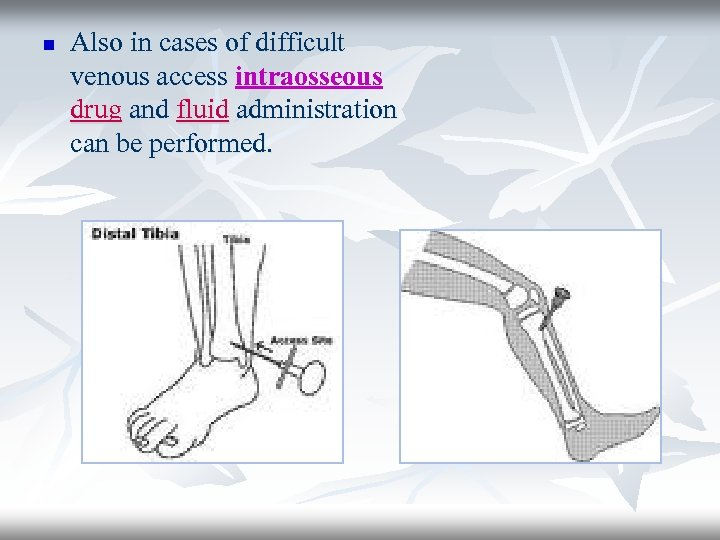 n Also in cases of difficult venous access intraosseous drug and fluid administration can