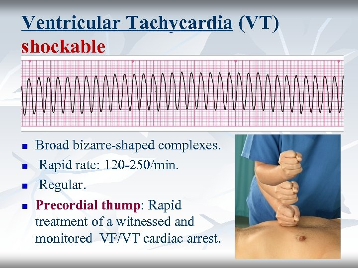 Ventricular Tachycardia (VT) shockable n n Broad bizarre-shaped complexes. Rapid rate: 120 -250/min. Regular.
