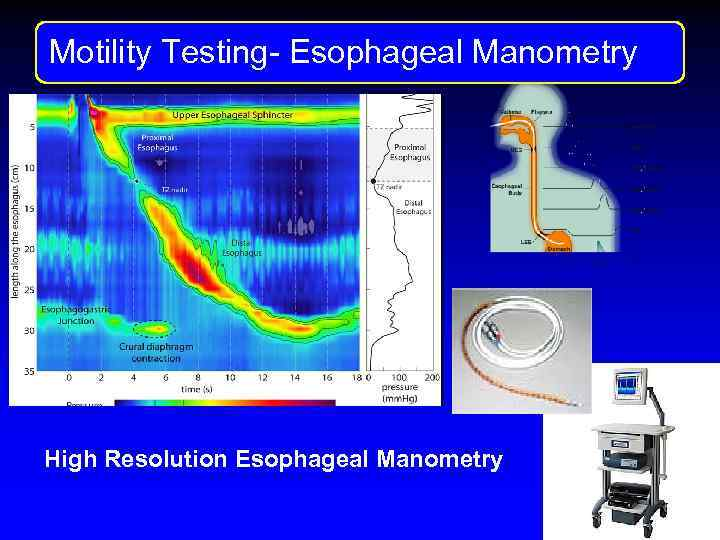 Motility Testng Motility Testing- Esophageal Manometry High Resolution Esophageal Manometry