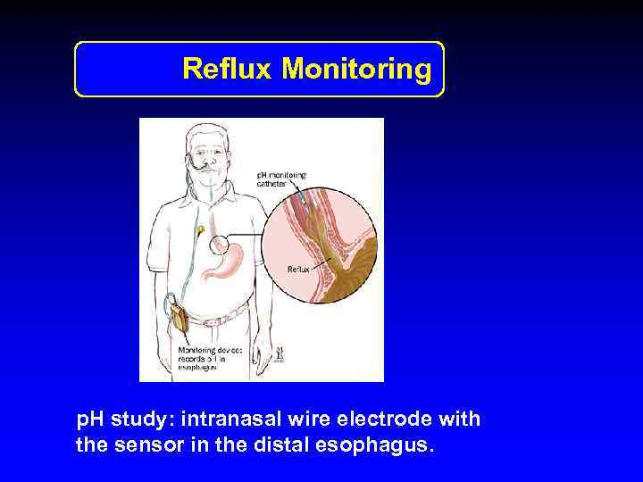 Reflux Monitoring p. H study: intranasal wire electrode with the sensor in the distal