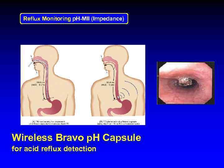 Reflux Monitoring p. H-MII (Impedance) Wireless Bravo p. H Capsule for acid reflux detection