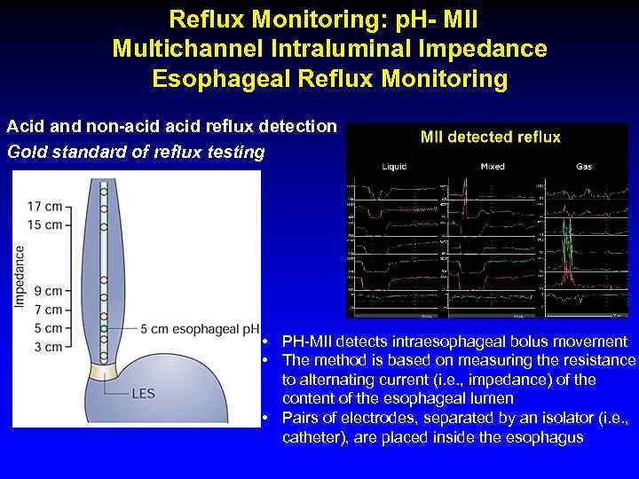 Reflux Monitoring: p. H- MII Multichannel Intraluminal Impedance Esophageal Reflux Monitoring Acid and non-acid