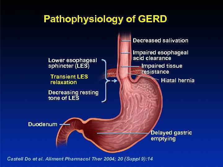 Pathophysiology of GERD Decreased salivation Lower esophageal sphincter (LES) Transient LES relaxation Impaired esophageal