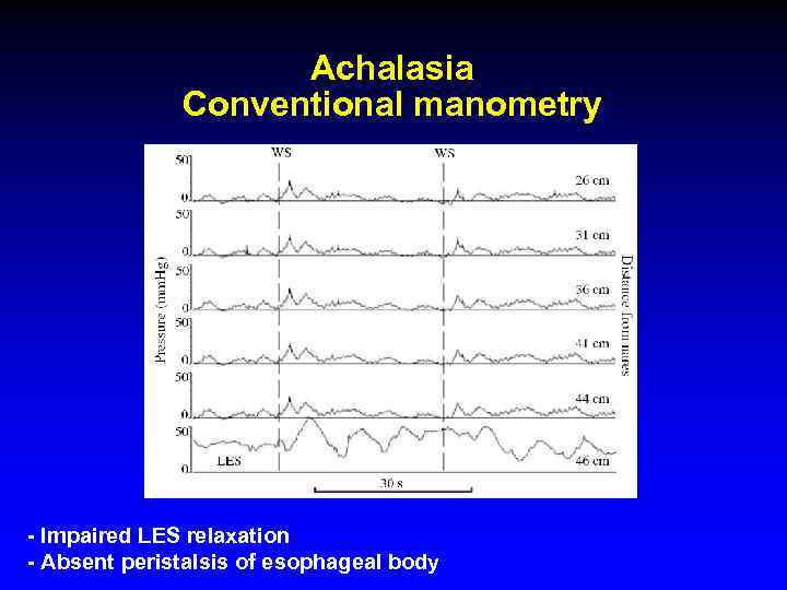 Achalasia Conventional manometry - Impaired LES relaxation - Absent peristalsis of esophageal body