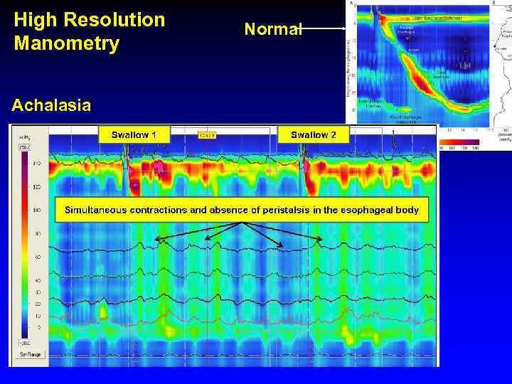 High Resolution Manometry Achalasia Normal