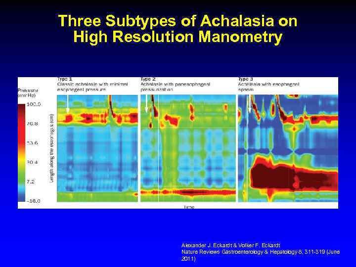 Three Subtypes of Achalasia on High Resolution Manometry Alexander J. Eckardt & Volker F.