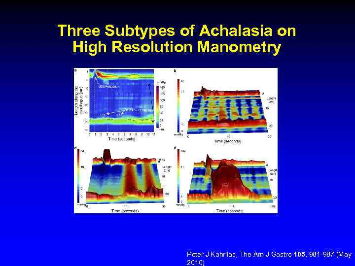 Three Subtypes of Achalasia on High Resolution Manometry Peter J Kahrilas, The Am J