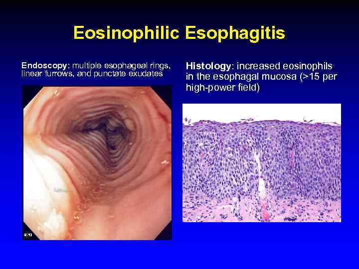 Eosinophilic Esophagitis Endoscopy: multiple esophageal rings, linear furrows, and punctate exudates Histology: increased eosinophils