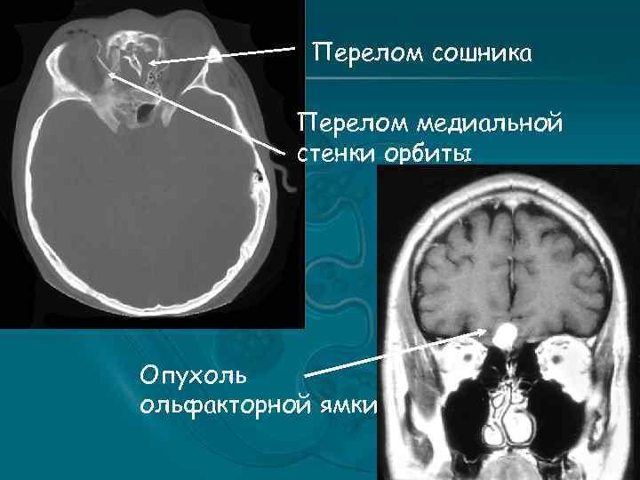 Перелом сошника Перелом медиальной стенки орбиты Опухоль ольфакторной ямки