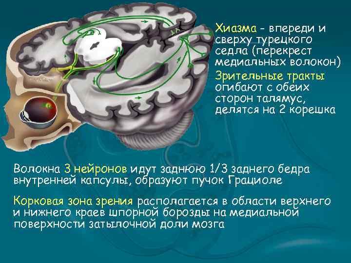Хиазма - впереди и сверху турецкого седла (перекрест медиальных волокон) Зрительные тракты огибают с