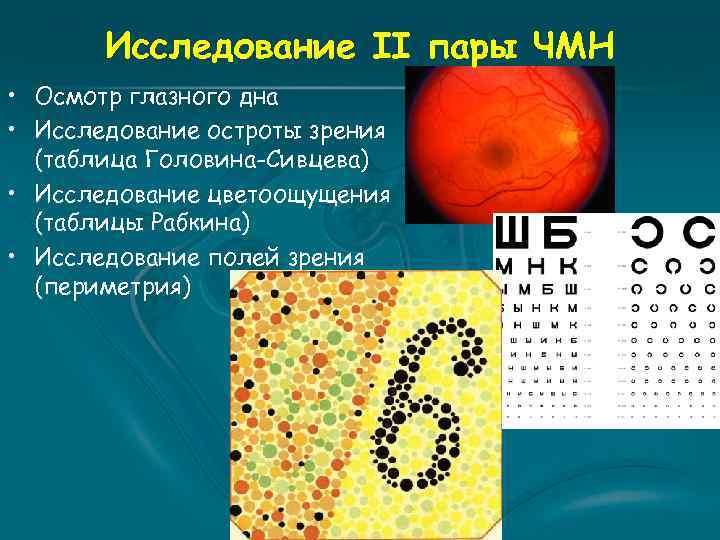 Исследование II пары ЧМН • Осмотр глазного дна • Исследование остроты зрения (таблица Головина-Сивцева)