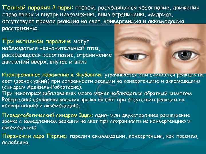 Полный паралич 3 пары: птозом, расходящееся косоглазие, движения глаза вверх и внутрь невозможны, вниз