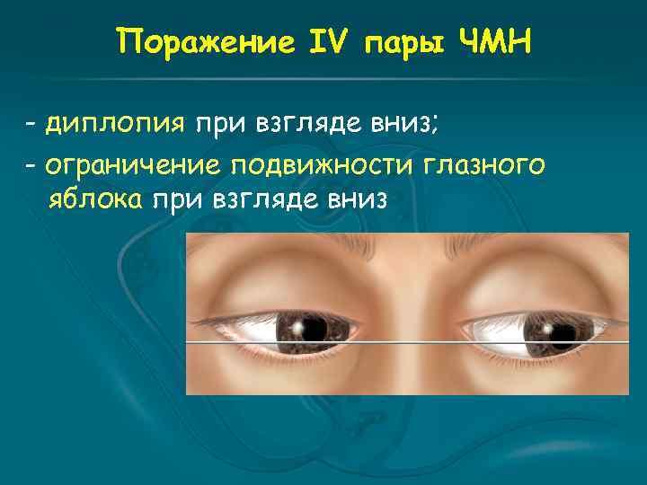 Поражение IV пары ЧМН - диплопия при взгляде вниз; - ограничение подвижности глазного яблока