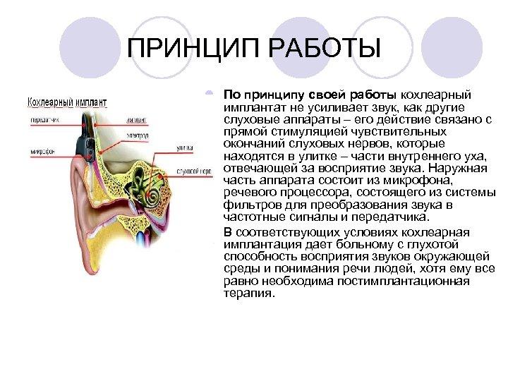 ПРИНЦИП РАБОТЫ l По принципу своей работы кохлеарный имплантат не усиливает звук, как другие