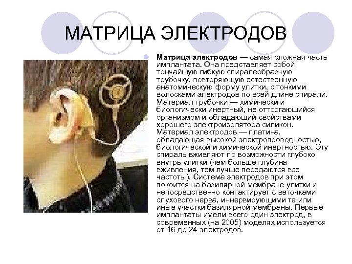МАТРИЦА ЭЛЕКТРОДОВ l Матрица электродов — самая сложная часть имплантата. Она представляет собой тончайшую