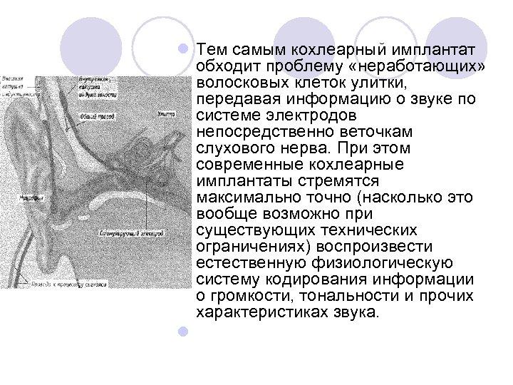 l Тем самым кохлеарный имплантат обходит проблему «неработающих» волосковых клеток улитки, передавая информацию о
