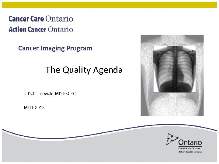 Cancer Imaging Program The Quality Agenda J. Dobranowski MD FRCPC MITT 2013