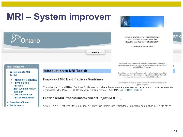 MRI – System improvement 53