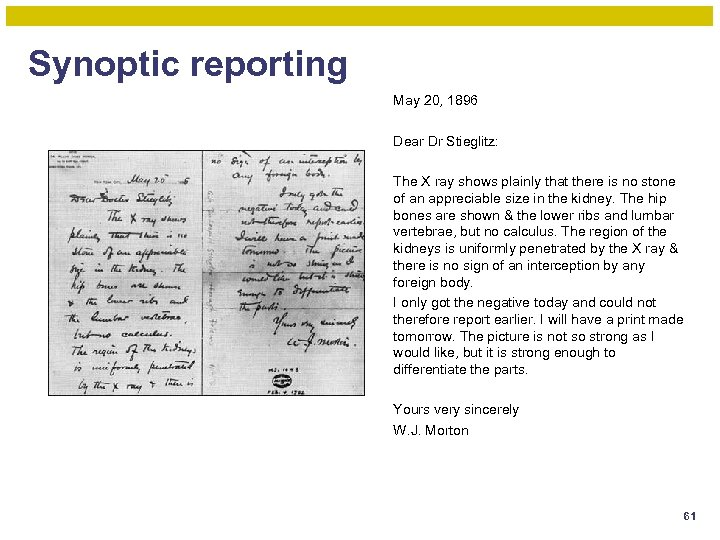 Synoptic reporting May 20, 1896 Dear Dr Stieglitz: The X ray shows plainly that