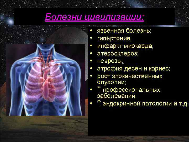 Болезни цивилизации: • • язвенная болезнь; гипертония; инфаркт миокарда; атеросклероз; неврозы; атрофия десен и
