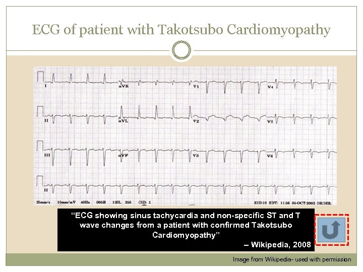 """ECG of patient with Takotsubo Cardiomyopathy """"ECG showing sinus tachycardia and non-specific ST and"""