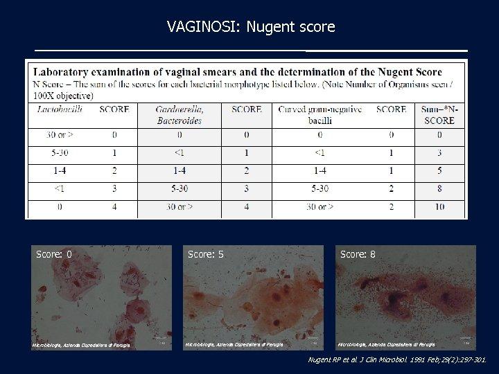 VAGINOSI: Nugent score Score: 0 Microbiologia, Azienda Ospedaliera di Perugia Score: 5 Microbiologia, Azienda