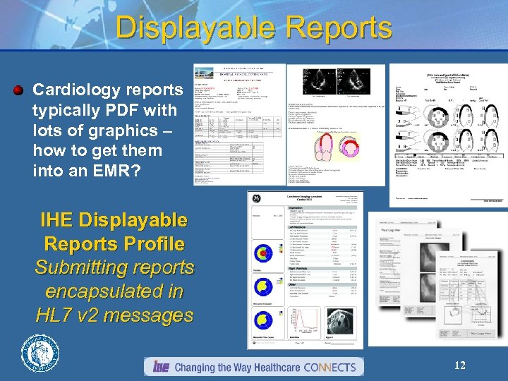 Displayable Reports Cardiology reports typically PDF with lots of graphics – how to get