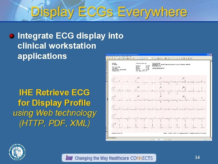 Display ECGs Everywhere Integrate ECG display into clinical workstation applications IHE Retrieve ECG for