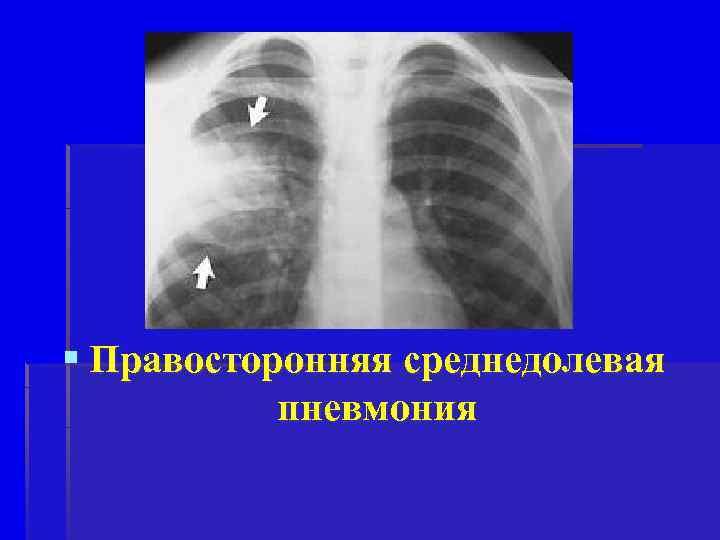 § Правосторонняя среднедолевая пневмония