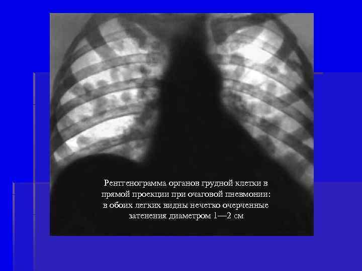 Рентгенограмма органов грудной клетки в прямой проекции при очаговой пневмонии: в обоих легких видны