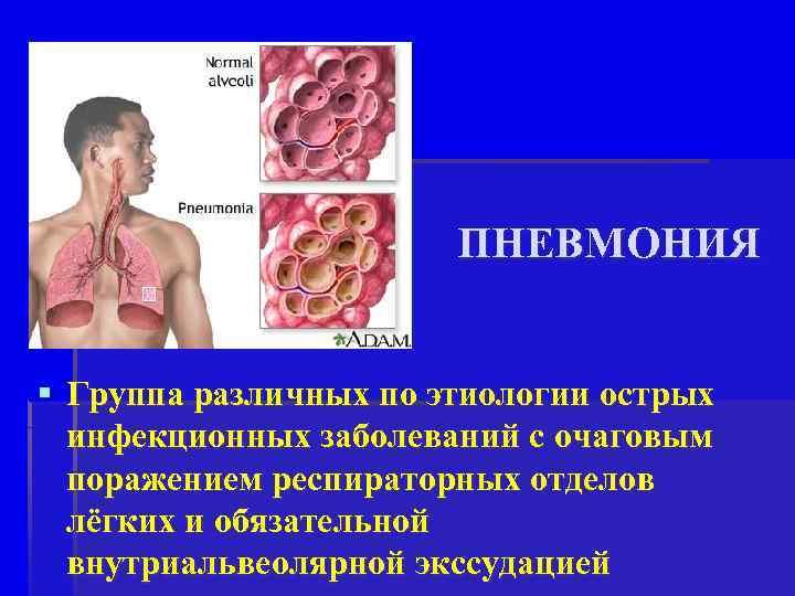 ПНЕВМОНИЯ § Группа различных по этиологии острых инфекционных заболеваний с очаговым поражением респираторных отделов