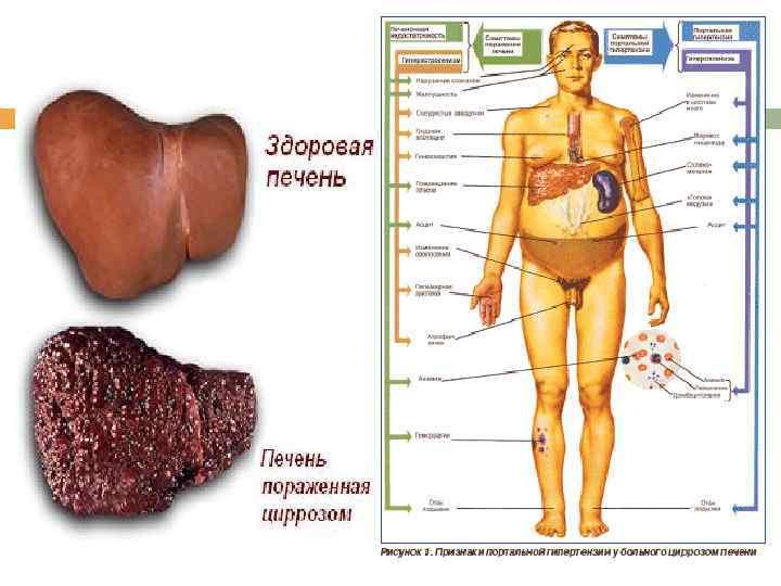 Проблемы пациента при гепатите б