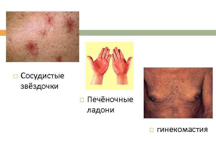 Сосудистые звёздочки Печёночные ладони гинекомастия