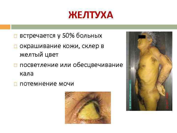 ЖЕЛТУХА встречается у 50% больных окрашивание кожи, склер в желтый цвет посветление или обесцвечивание