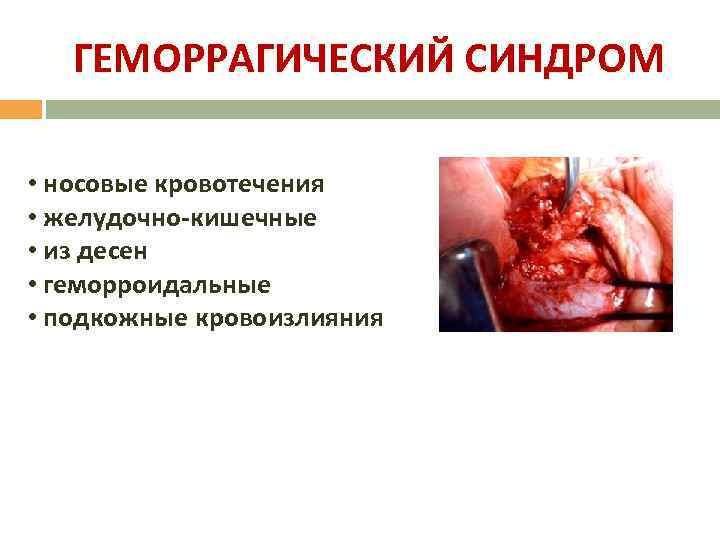 ГЕМОРРАГИЧЕСКИЙ СИНДРОМ • носовые кровотечения • желудочно-кишечные • из десен • геморроидальные • подкожные