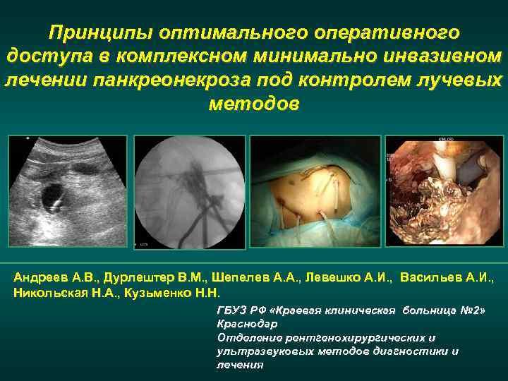Принципы оптимального оперативного доступа в комплексном минимально инвазивном лечении панкреонекроза под контролем лучевых методов