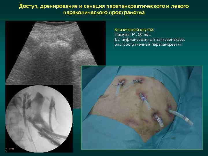 Доступ, дренирование и санация парапанкреатического и левого параколического пространства Клинический случай: Пациент Р. ,