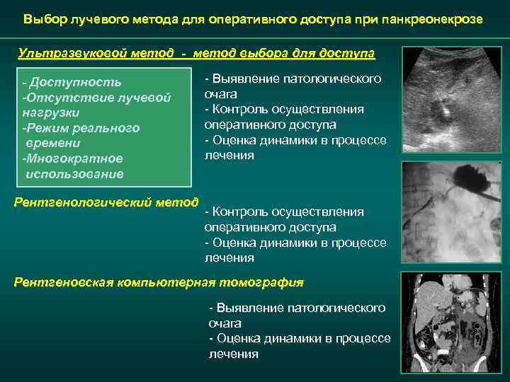 Выбор лучевого метода для оперативного доступа при панкреонекрозе Ультразвуковой метод - метод выбора для