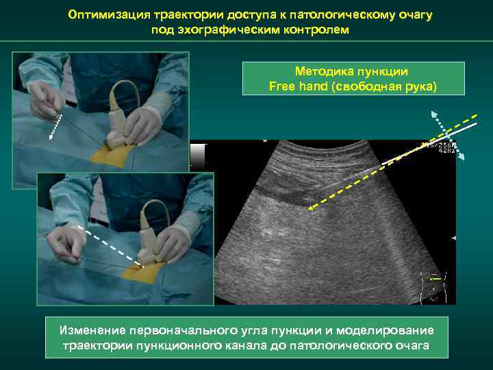 Оптимизация траектории доступа к патологическому очагу под эхографическим контролем Методика пункции Free hand (свободная