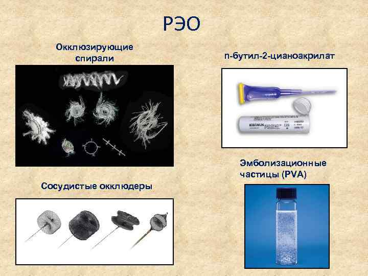 РЭО Окклюзирующие спирали n-бутил-2 -цианоакрилат Эмболизационные частицы (PVA) Сосудистые окклюдеры