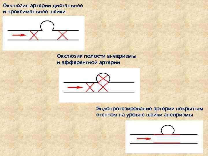 Окклюзия артерии дистальнее и проксимальнее шейки аневризмы Окклюзия полости аневризмы и афферентной артерии Эндопротезирование