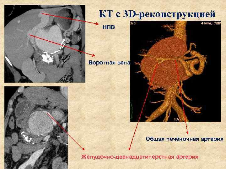 КТ с 3 D-реконструкцией НПВ Воротная вена Общая печёночная артерия Желудочно-двенадцатиперстная артерия
