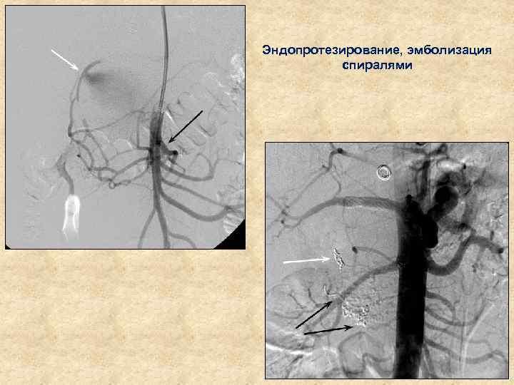 Эндопротезирование, эмболизация спиралями