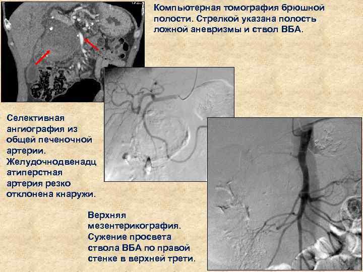 Компьютерная томография брюшной полости. Стрелкой указана полость ложной аневризмы и ствол ВБА. Селективная ангиография