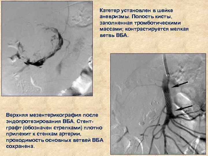 Катетер установлен в шейке аневризмы. Полость кисты, заполненная тромботическими массами; контрастируется мелкая ветвь ВБА.