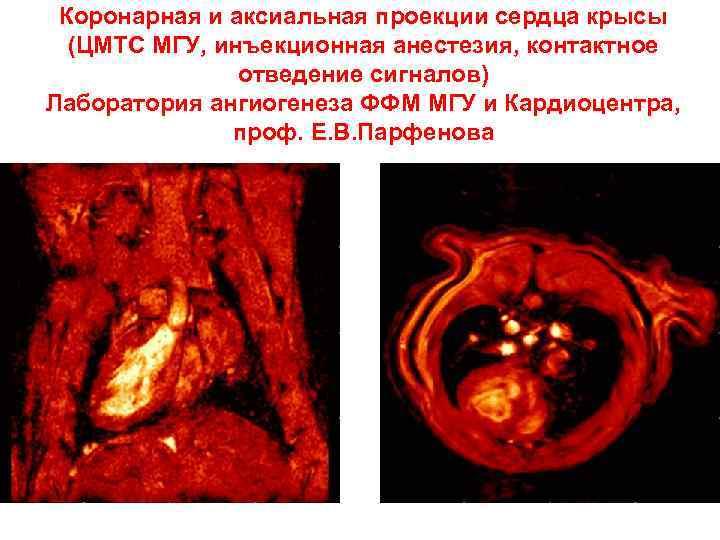 Коронарная и аксиальная проекции сердца крысы (ЦМТС МГУ, инъекционная анестезия, контактное отведение сигналов) Лаборатория